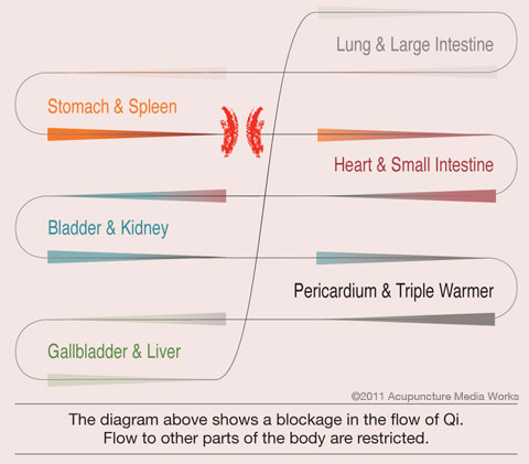 Diagram of the blockage of the flow of Qi in the body